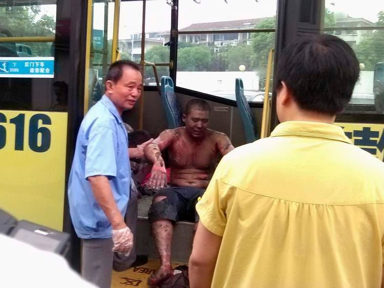 Rescuers help an injured man get off a bus, near a hospital, after an explosion at a factory in Kunshan