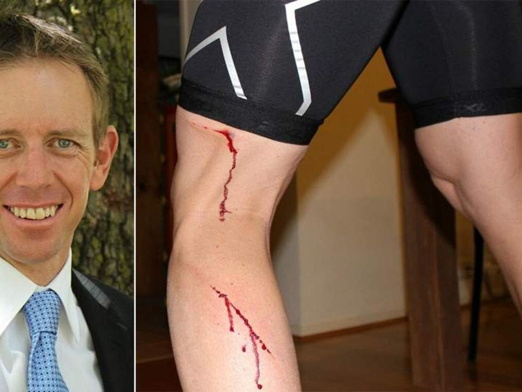 Shane Rattenbury Attacked By Kangaroo