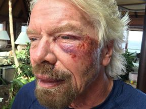 Branson's cheek was badly damaged