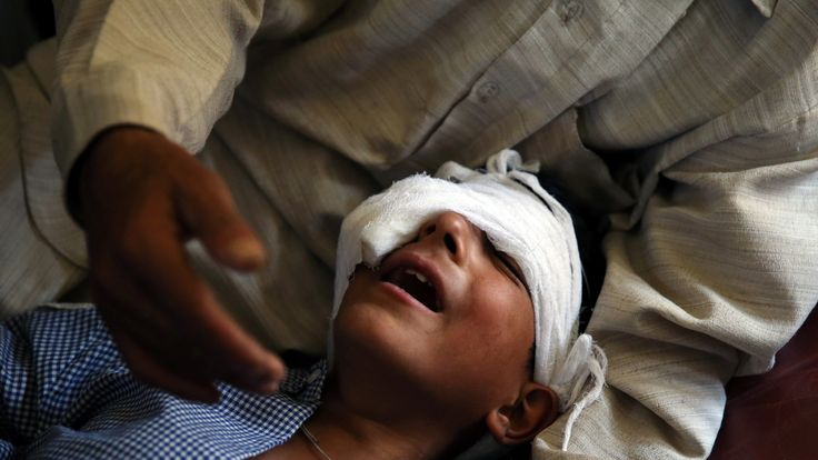 A father claims his son was injured by pellets shot by security forces in Srinagar, Kashmir
