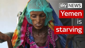 The people of Yemen are starving