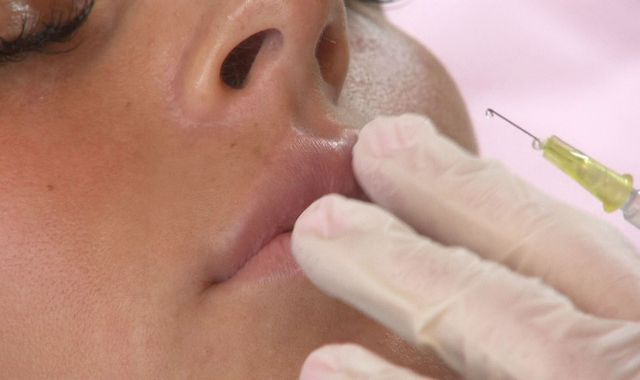 Victim of botched lip filler op warns of dangers