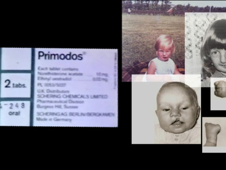 A public inquiry in investigating allegations of birth defects as a result of the drug Primodos
