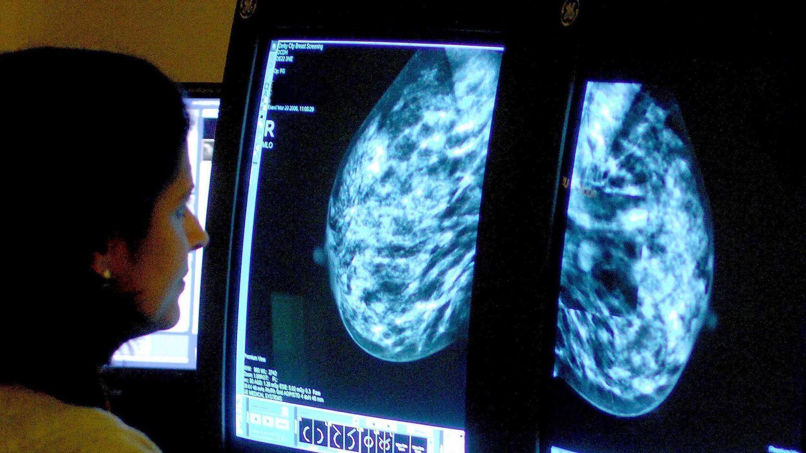 Scotland gets cancer drug under threat in England