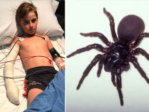 'Biggest ever' antivenom dose saves boy bitten by funnel-web spider in Australia