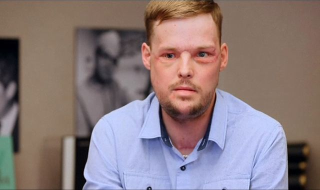 Face transplant surgery exceeds patient Andy Sandness' expectations