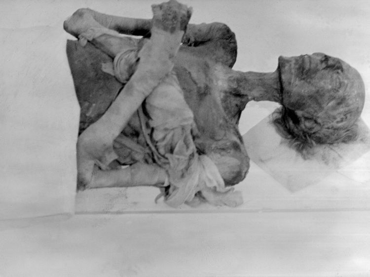 Pharaoh Ramses II's mummy seen in Paris in 1976