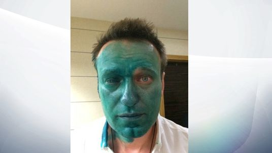 Alexei Navalny after the attack