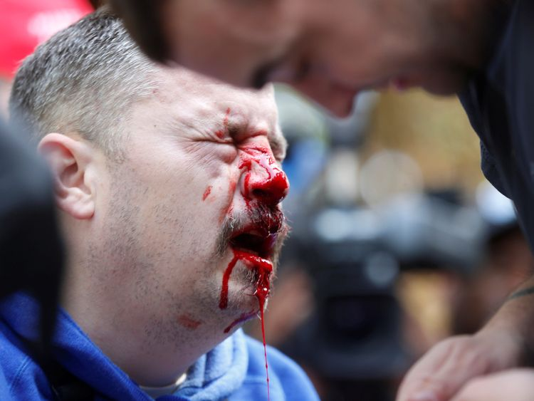A pro-Trump supporter bleeds after being hit by a counter protester during the Patriots Day Free Speech Rally