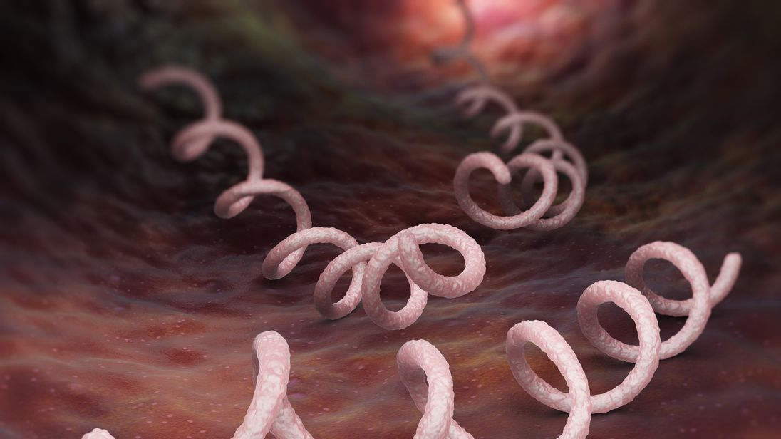 Syphilis is caused by a bacterial infection and can cause serious long term problems
