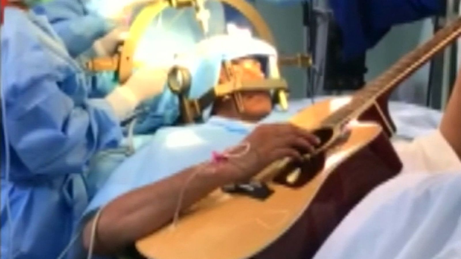 Bengaluru man treats himself by playing guitar during brain surgery