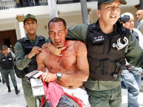 An injured government supporter is taken away by security forces