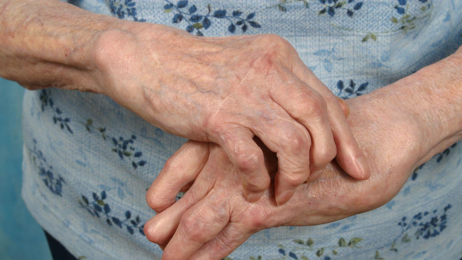 Arthritis sufferers 'struggling in silence'