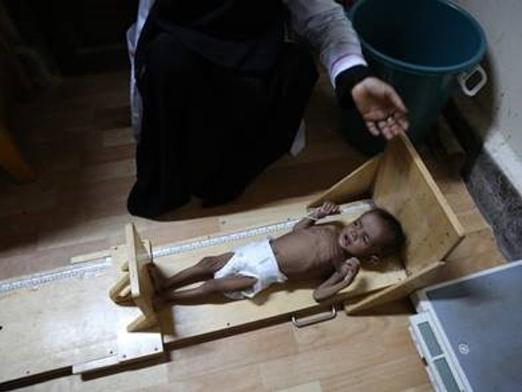 Millions of children are at greater risk from cholera due to malnutrition