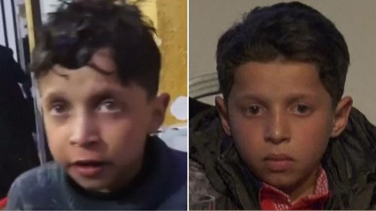 Hassan Diab after the attack (L) and at the OPCW news conference (R)