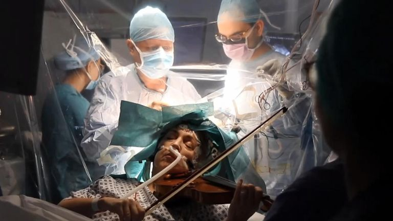 An orchestra violinist played her instrument during an operation to remove a brain tumor at King's College Hospital in London on January 31, ensuring the musician's hand movement and coordination was not accidentally damaged by surgeons.
