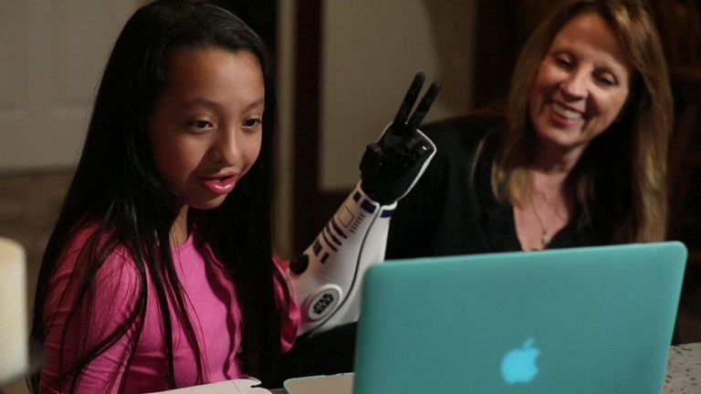 11-year-old amputee Bella Tadlock has become the first person to receive an R2-D2-style bionic arm