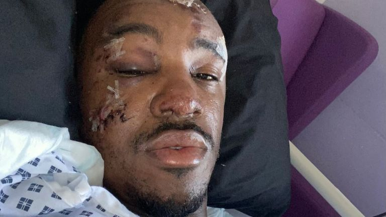 Rapper Bugzy Malone says he is 'lucky to be alive' after quad bike crash in Bury. Pic: @TheBugzyMalone/ Twitter