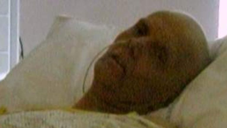 Former KGB agent Alexander Litvinenko after being poisoned SAFE TO USE