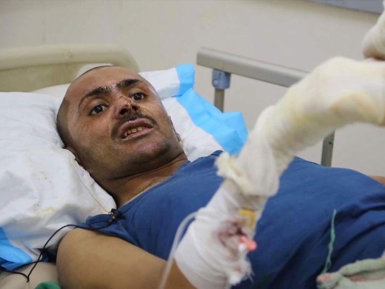 Yemen - Driver Abdul Bari Faqih wounded in airstrike talks to Sky News