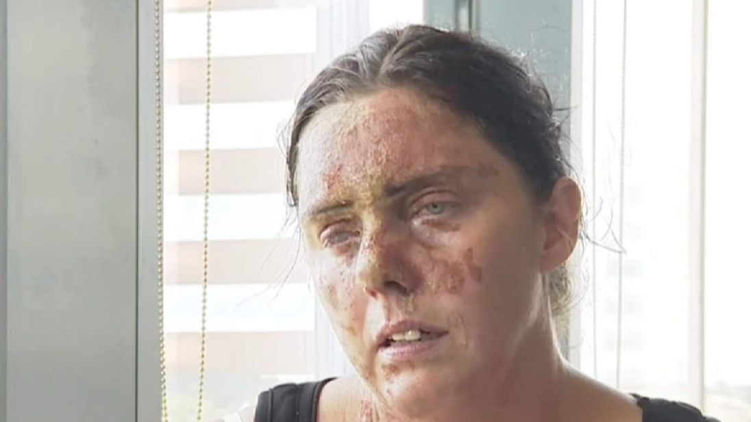 Acid attack victim Carla Whitlock