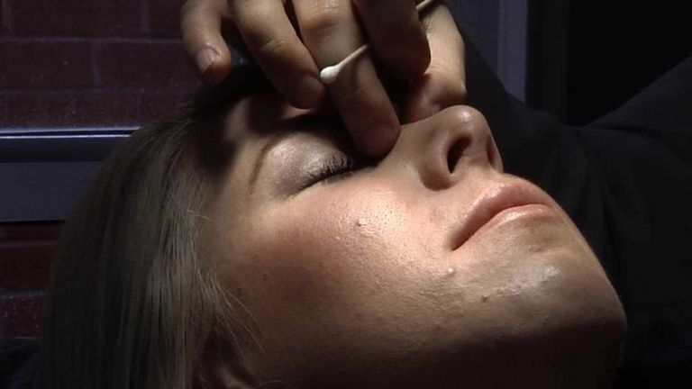 A woman undergoing cosmetic surgery