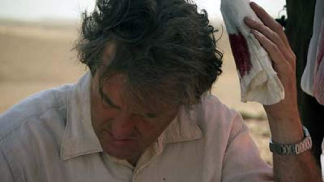 James May Is Injured While Filming Top Gear
