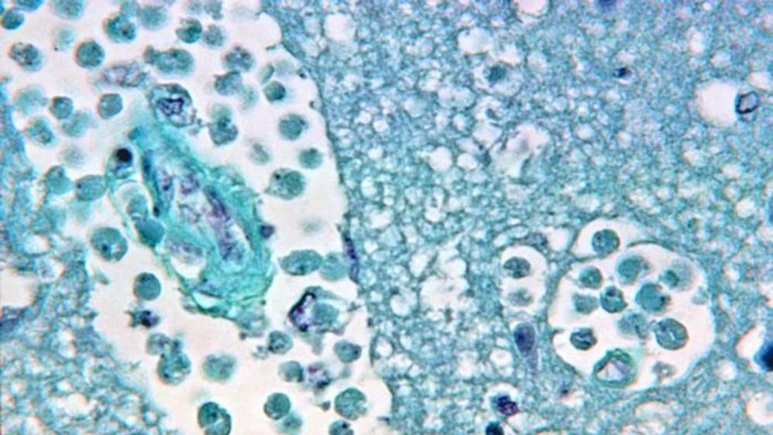 Brain-eating amoeba Naegleria fowleri (Pic: CDC)