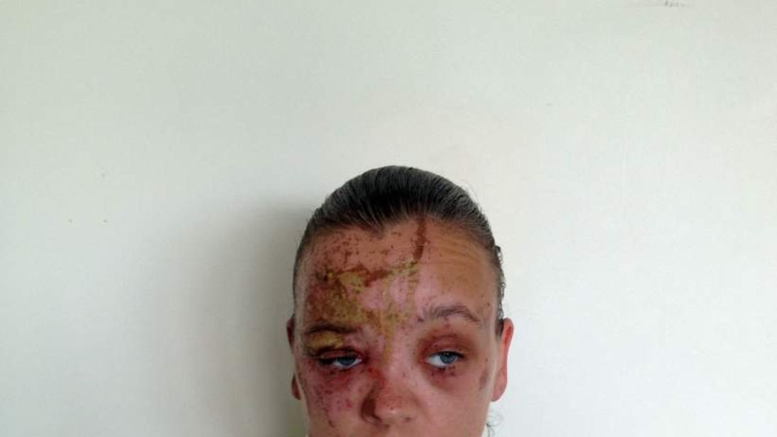 The woman who was attacked on her doorstep
