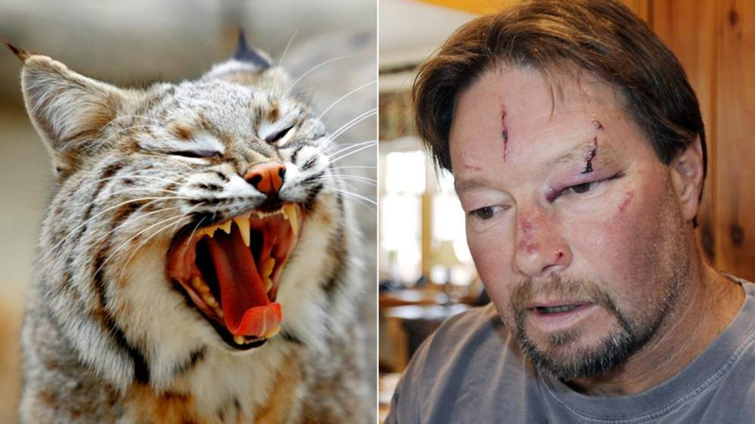 Man Attacked By Bobcat In Massachusetts