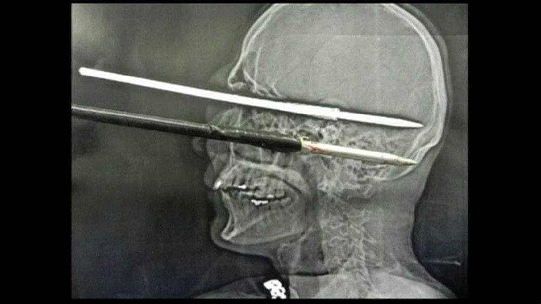 Brazilian man shot himself through the eye while cleaning harpoon gun