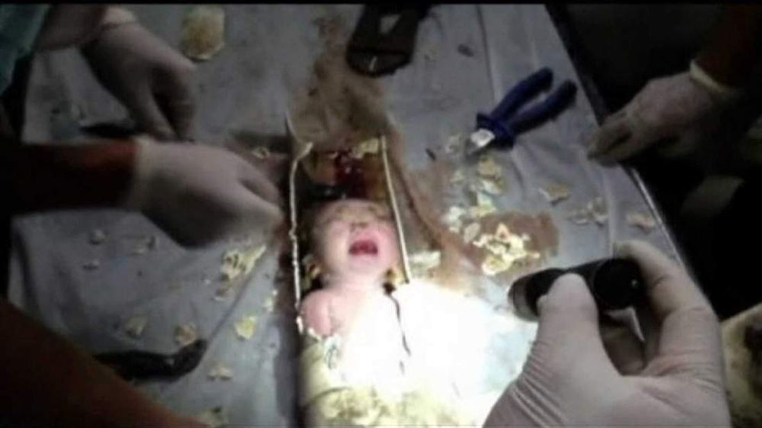 Newborn baby rescued from sewer pipe