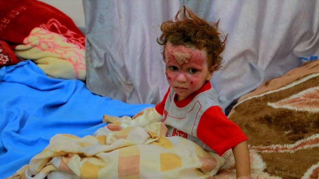 Burned child in hospital in Yemen