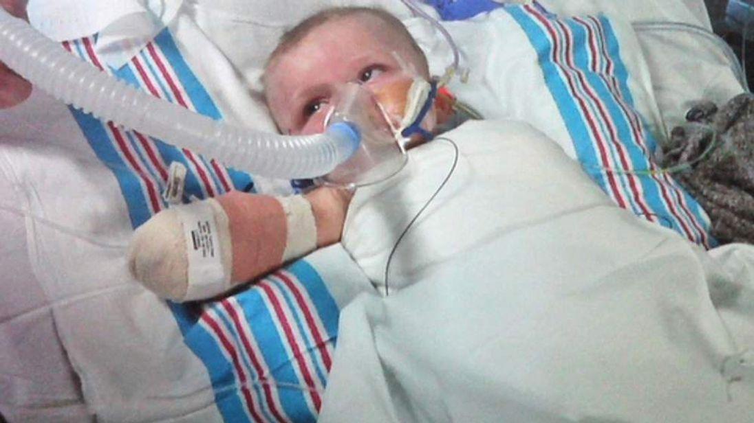 baby with menigitis in hospital