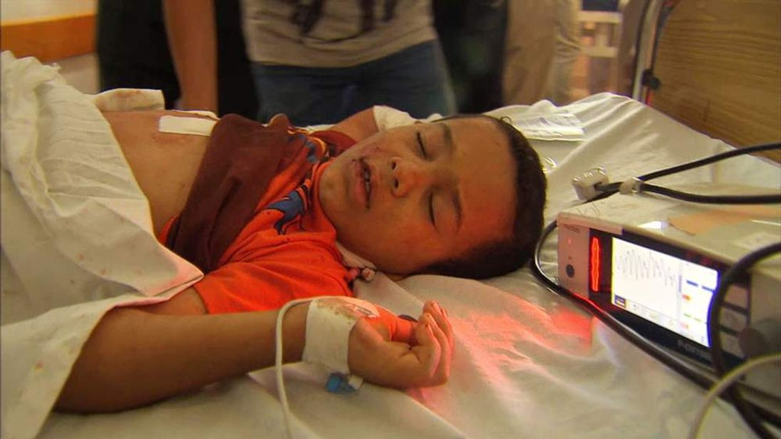 An injured Palestinian child in Al Shifa Hospital in Gaza City
