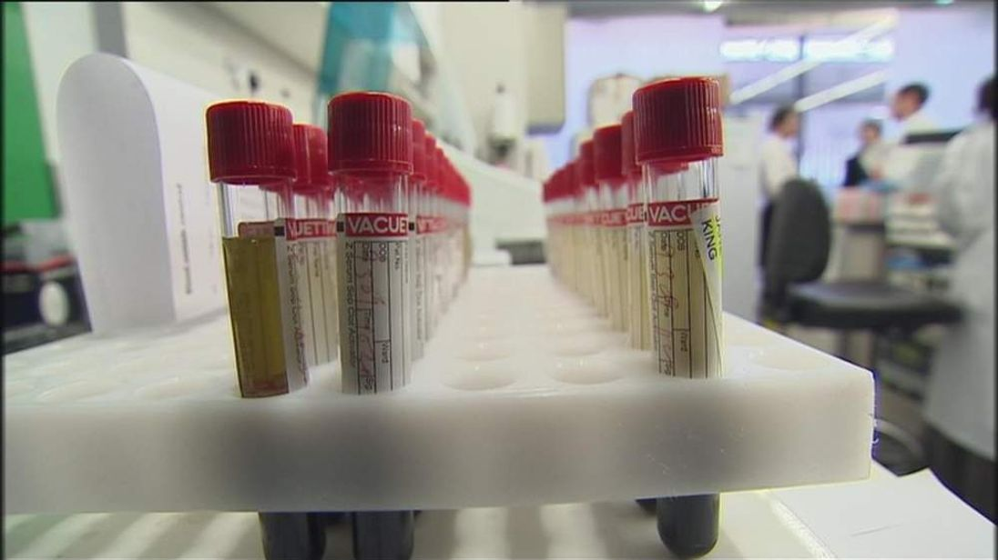 Ovarian Cancer Tests