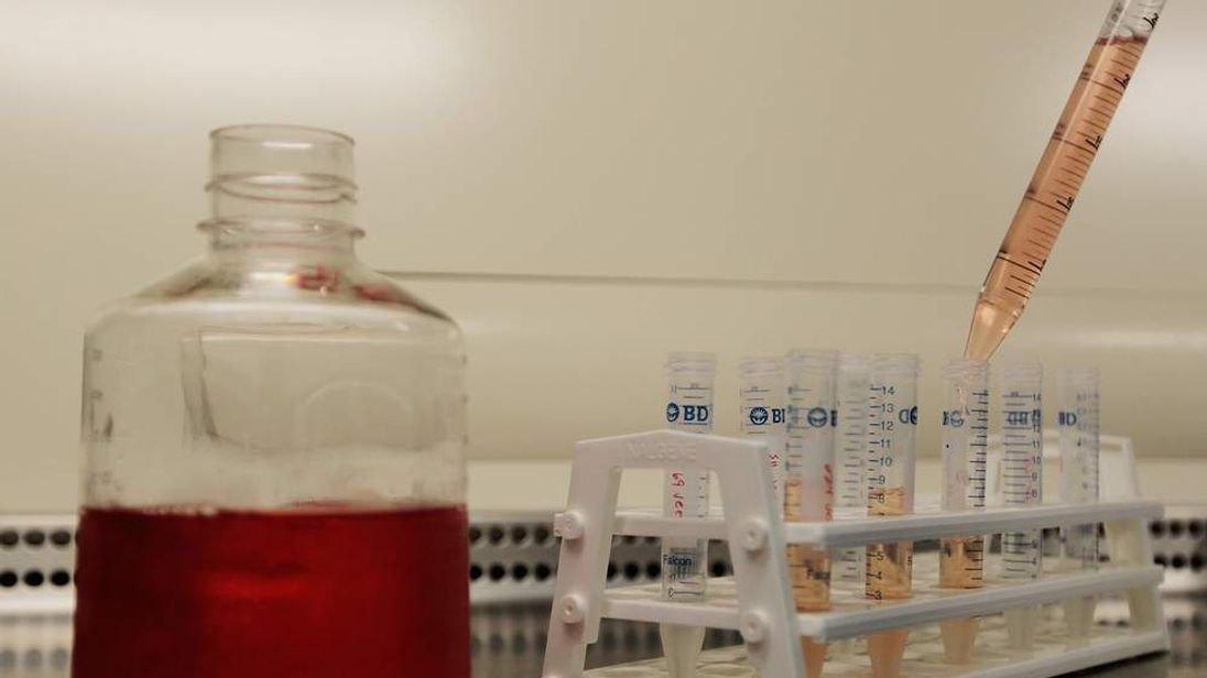 Aids Vaccine Research Continues In Brooklyn Lab