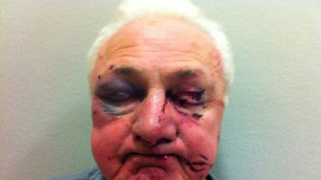 The injured 78-year-old