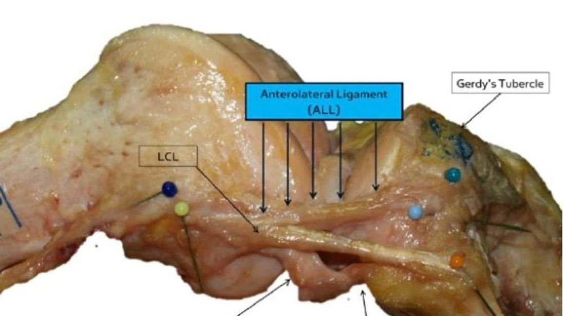 Surgeons Discover New Ligament In Human Knee