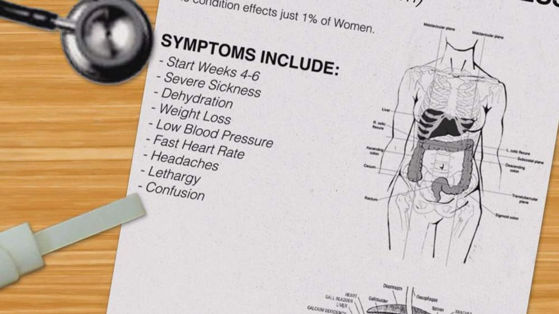 Facts about hyperemesis gravidarum - a severe type of morning sickness.