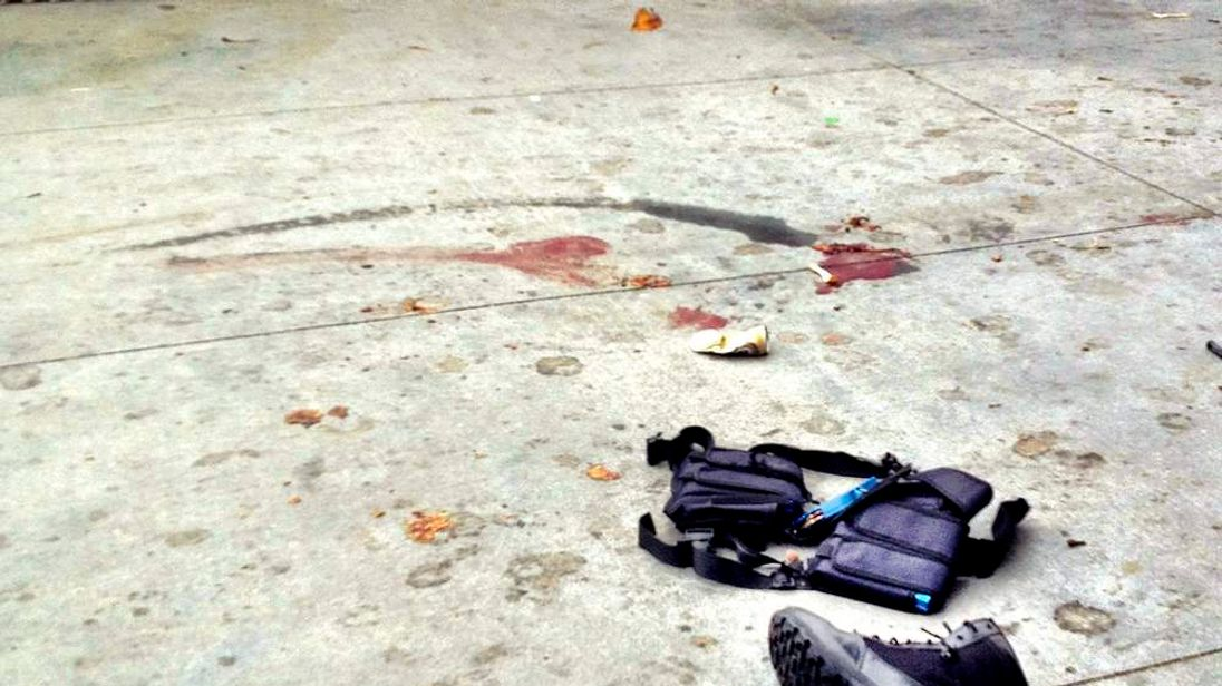The equipment of a man believed to be the suspect in a shooting incident lies on the pavement after he was shot in Santa Monica.