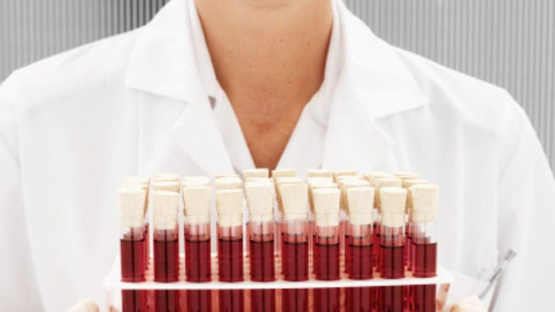 Close-up of a medical professional holding a rack of test tubes