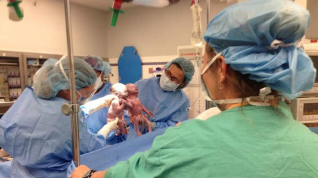 Sarah Thistlethwaite said babies Jillian and Jenna  born holding hands  Credit: AKRON CHILDREN'S HOSPITAL
