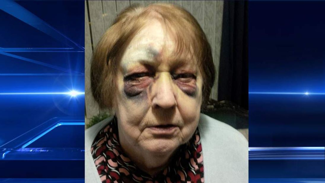 A 79-year-old mugging victim