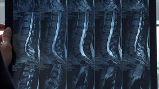 An X-ray showing a person's spine