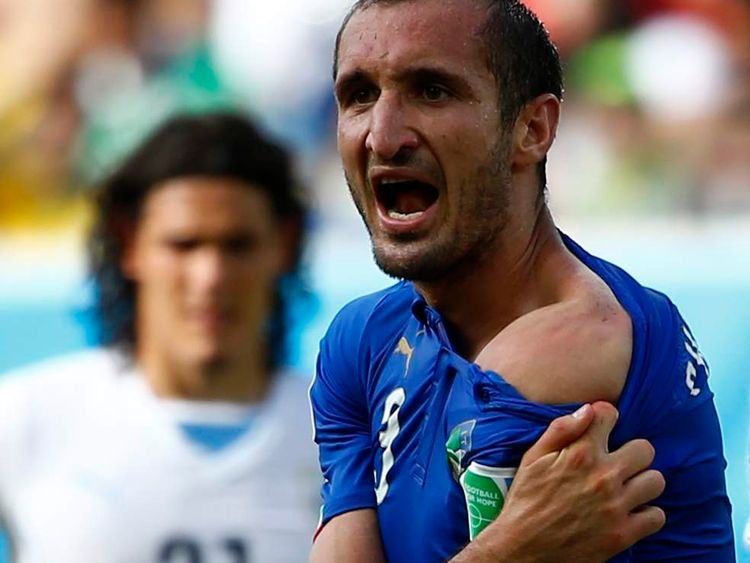 Italy's Giorgio Chiellini shows his shoulder, claiming he was bitten by Uruguay's Luis Suarez, during their 2014 World Cup Group D match at the Dunas arena in Natal.