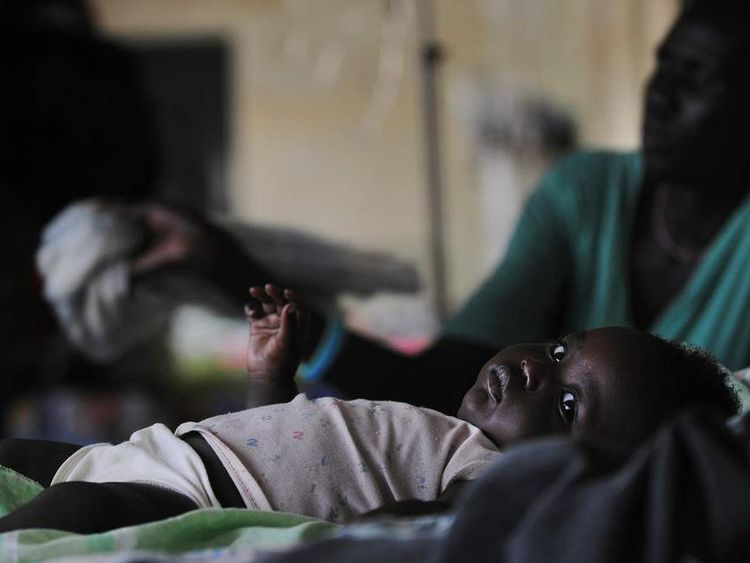 Baby Suffering From Malaria