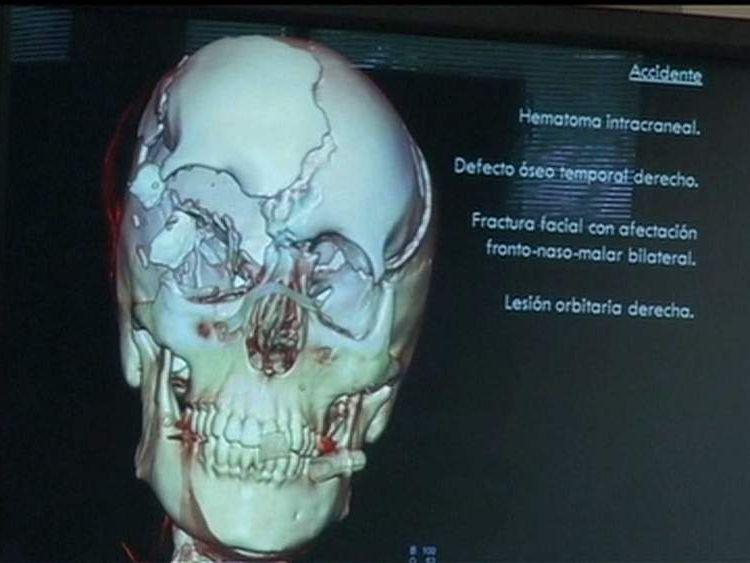 Scan of Maria de Villota head injuries