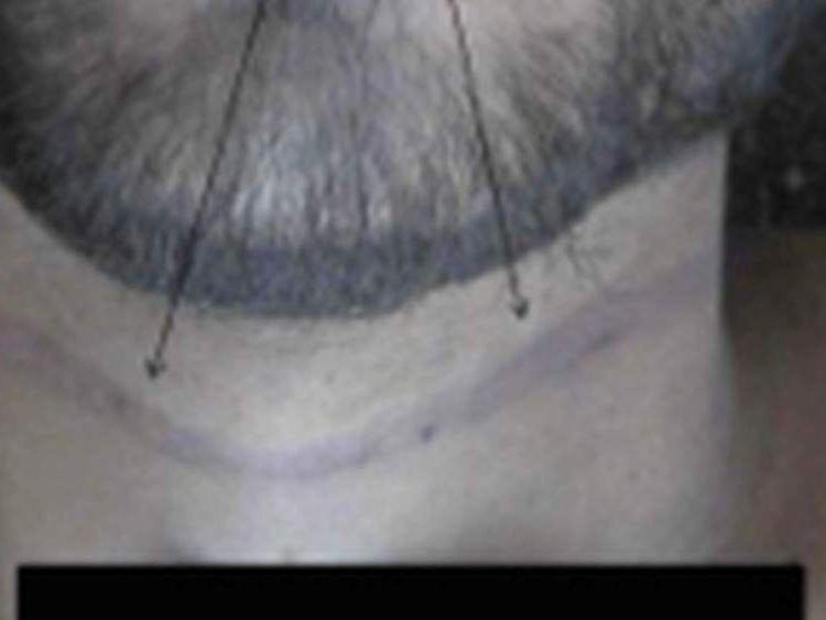 Ligature marks