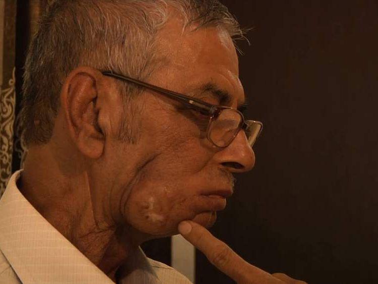 Naveen Khanna, mouth cancer victim.